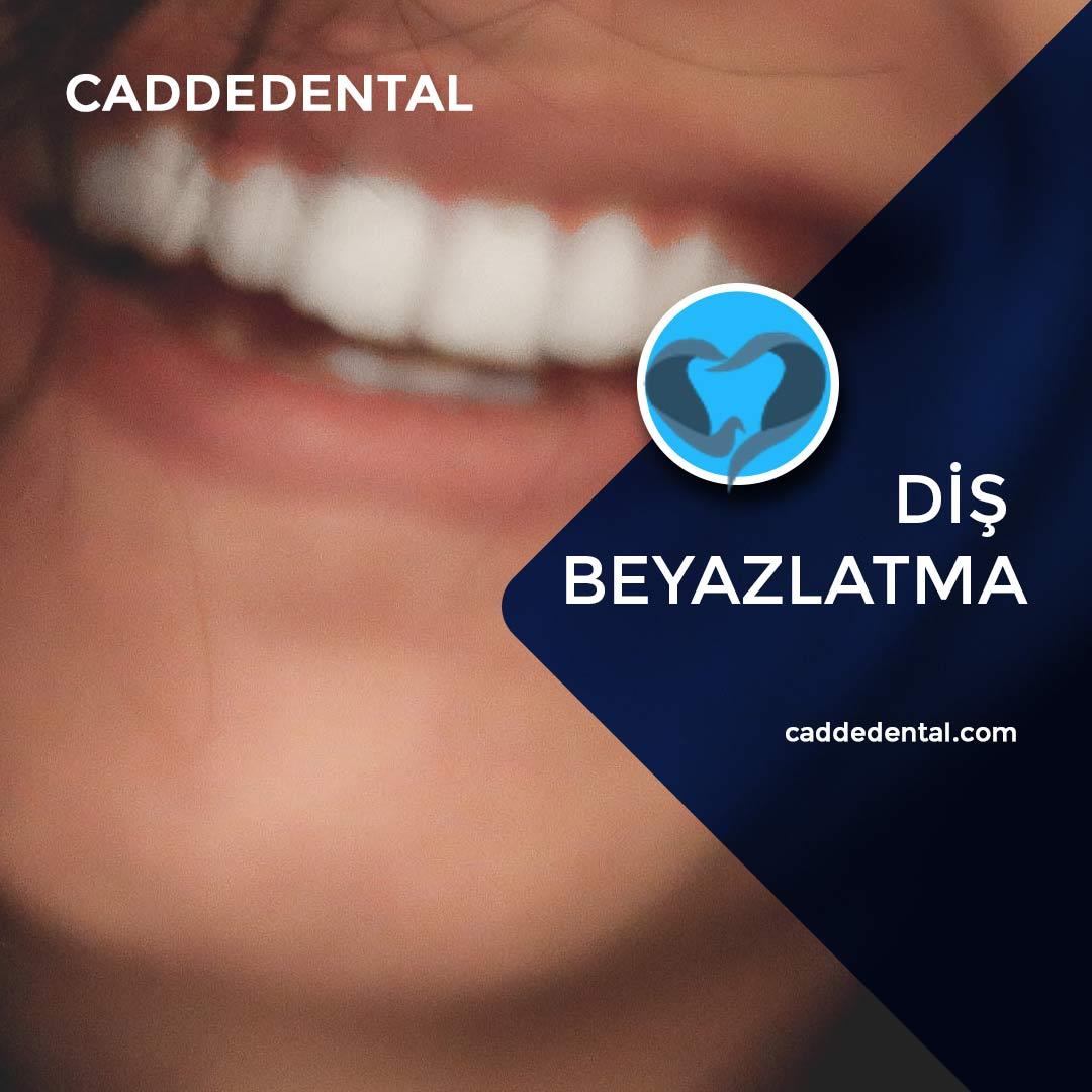 diş beyazlatma bleaching işlemi