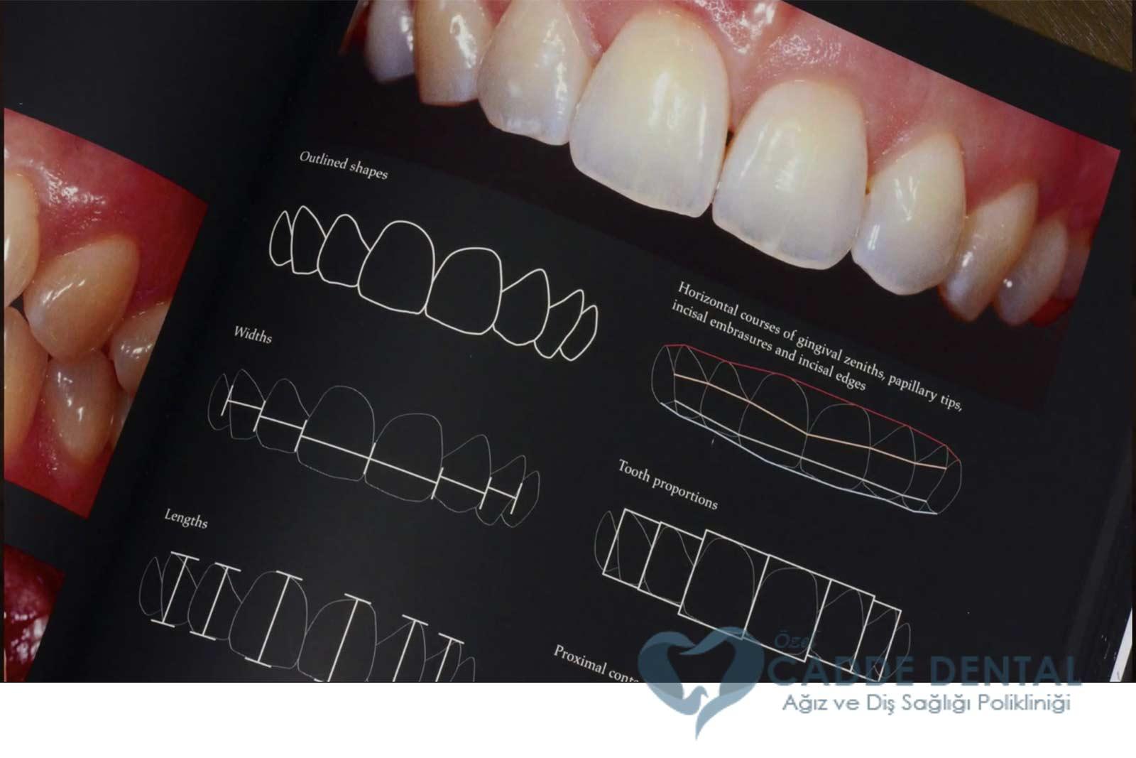 gülüş tasarımı diş polikliniği