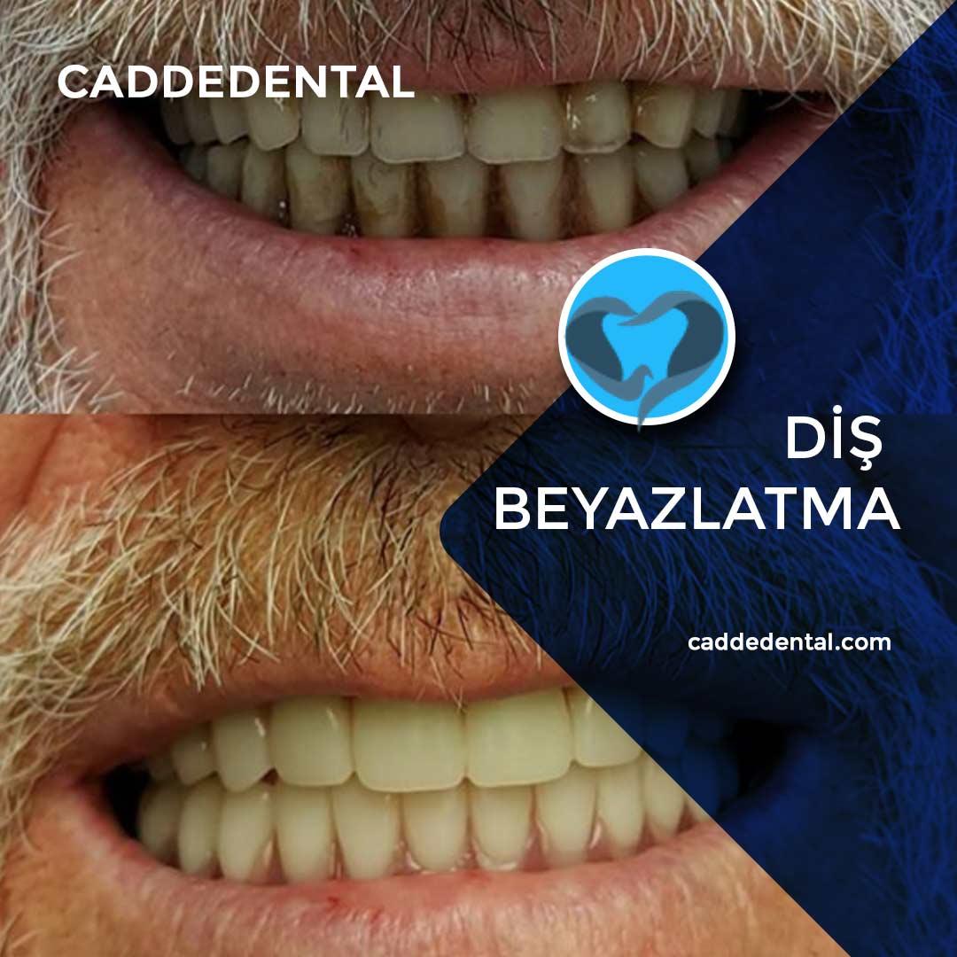 diş beyazlatma uygulaması izmir