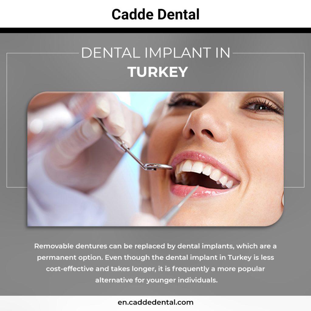 dental implant in Turkey