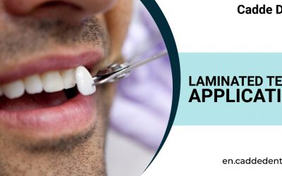 Laminated Teeth Application