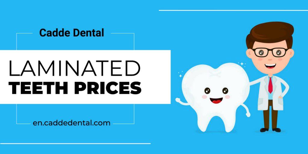 Laminated Teeth Prices