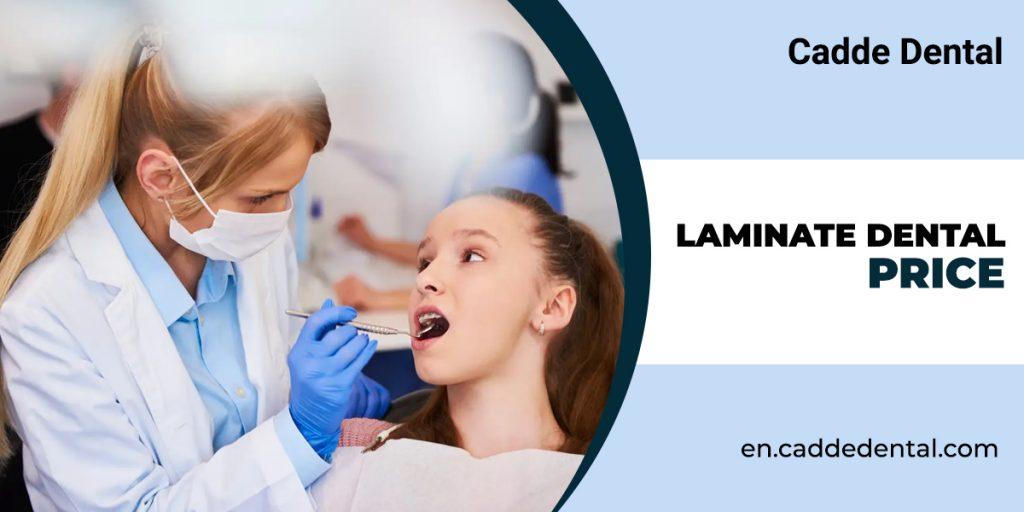 laminate dental price